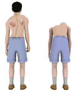 强直性脊柱炎会发生的原因