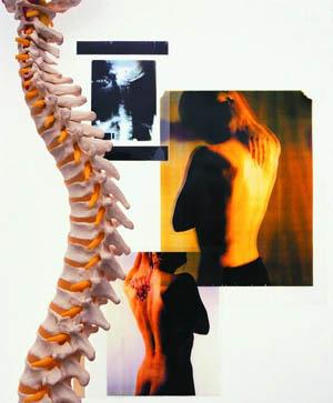 强直性脊柱炎三种常见的症状
