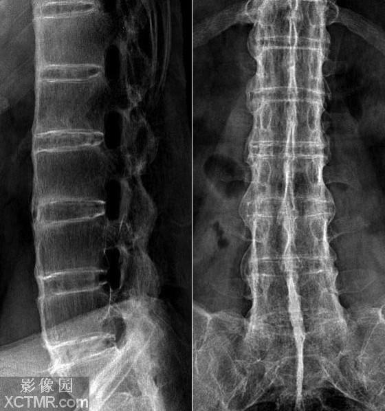 强直性脊柱炎的危害有什么