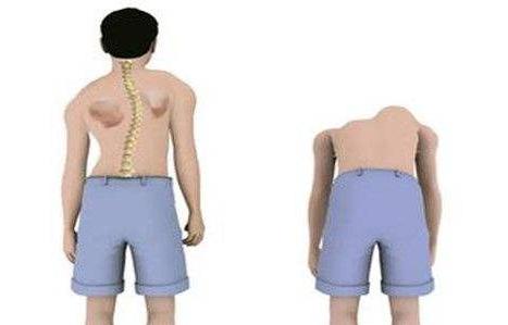 强直性脊柱炎能不能治好,日常这五点要了解